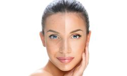 Mezoterapija lica i tijela