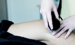 Radiofrekvencija, zatezanje opuštene kože koljena