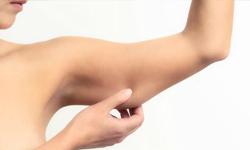 Radiofrekvencija (RF), zatezanje opuštene kože ruku